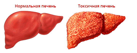 Елена Малышева: спасаем печень! Препарат Стабилин