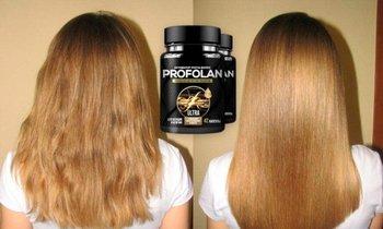 Средство для роста волос Профолан Profolan
