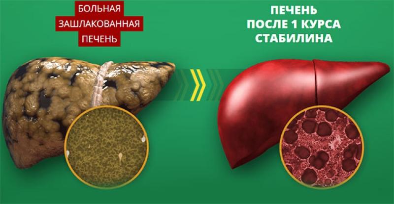 Препарат Stabilin для восстановления печени